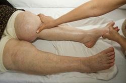 Lymphedema Therapy | Saint Thomas Health